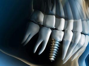 Dental Implants - Altima Dental