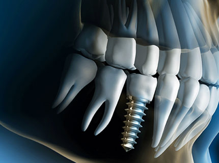 Things to Know Before Getting Dental Implants