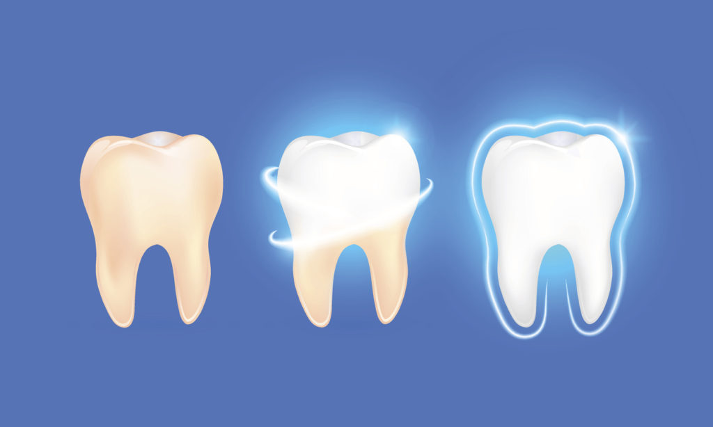 Tooth enamel erosion and restoration