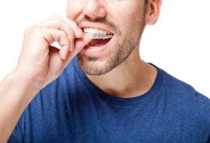 Invisalign aligners dental service Canada
