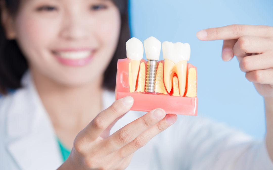Dental Surgery Implant - Altima Dental Canada