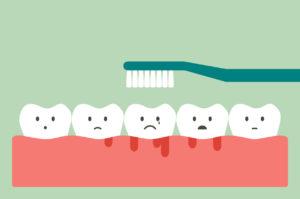 causes of bleeding gums