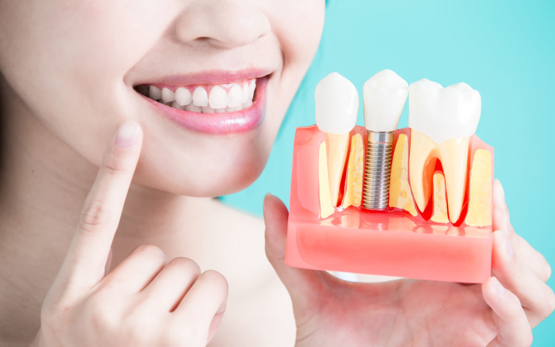 Does Smoking have an Affect on Dental Implants?