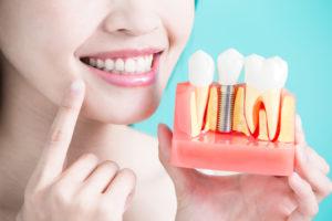 smoking dental implants Altima Dental