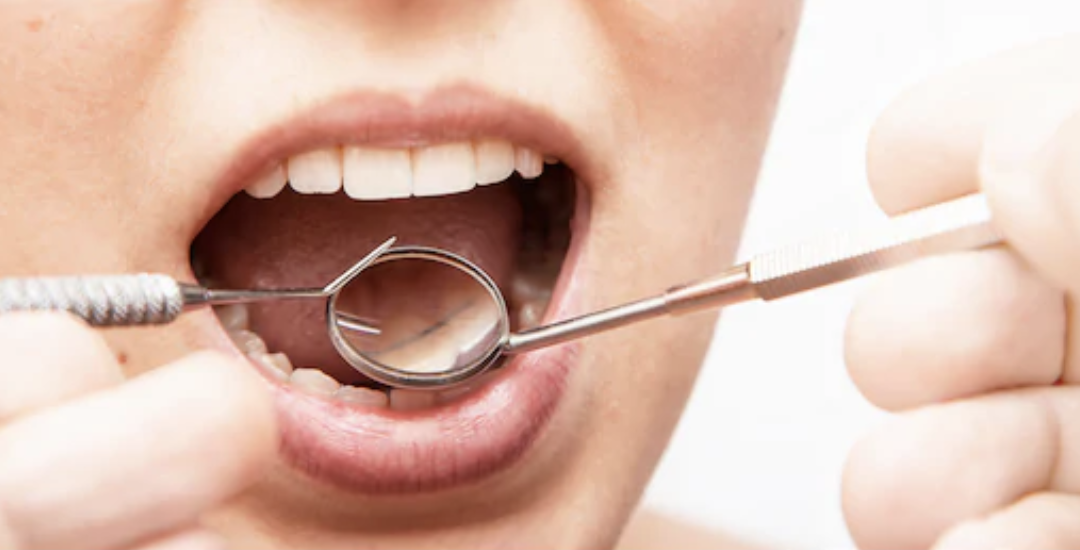 what is gingivitis?