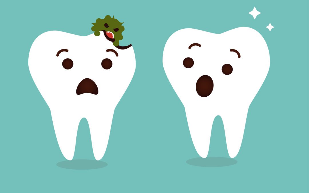 Tooth Decay: Causes, Symptoms, and Prevention