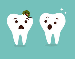 tooth decay - Altima Dental