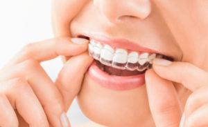 invisalign-altima-dental