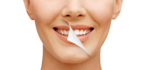 Teeth-Whitening-Altima-Dental