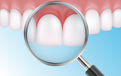 How to Treat & Prevent Gum Infections