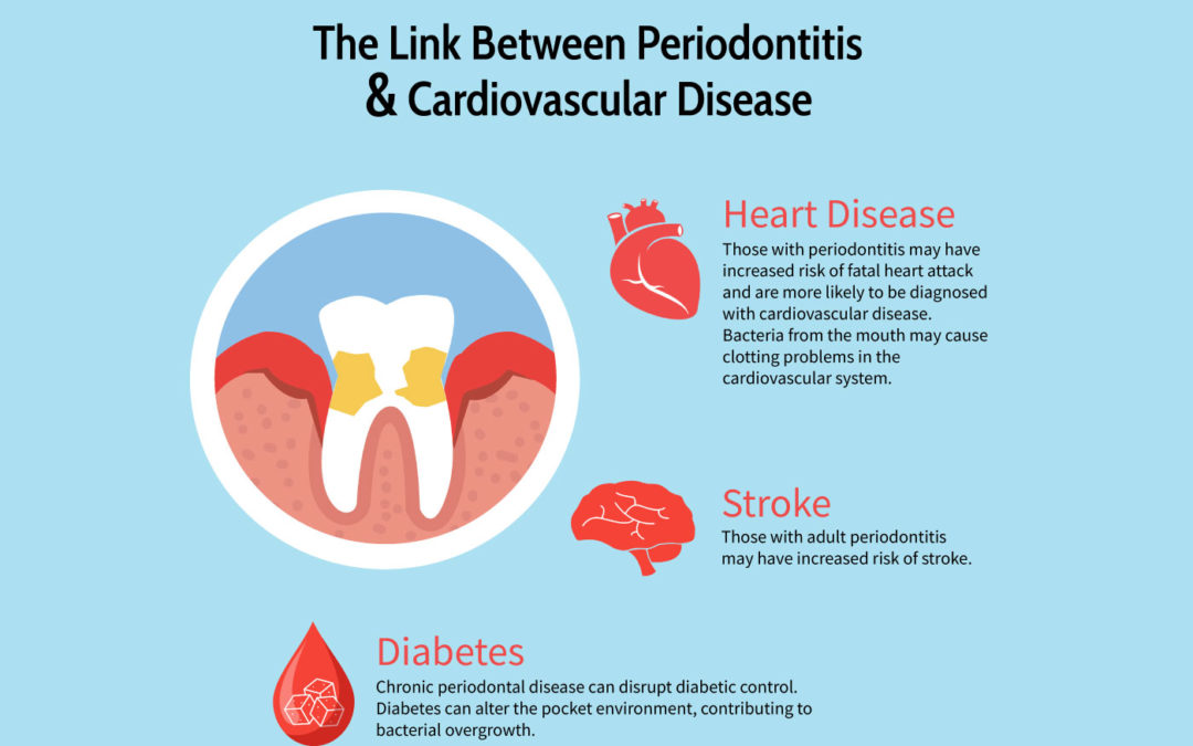 Does A Healthy Mouth Mean A Healthy Heart?